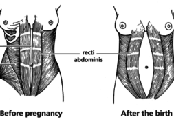 flatter stomach after pregnancy