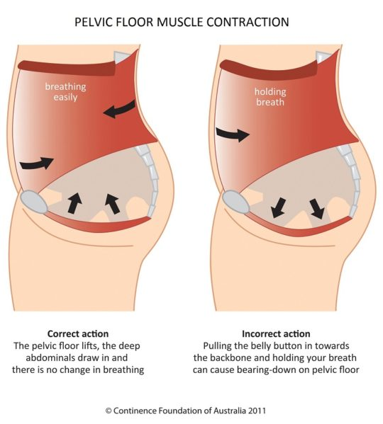 PFM contraction with title 540x599 - 5 Ways to Strengthen Your Pelvic Floor
