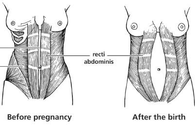 flatter stomach after pregnancy
